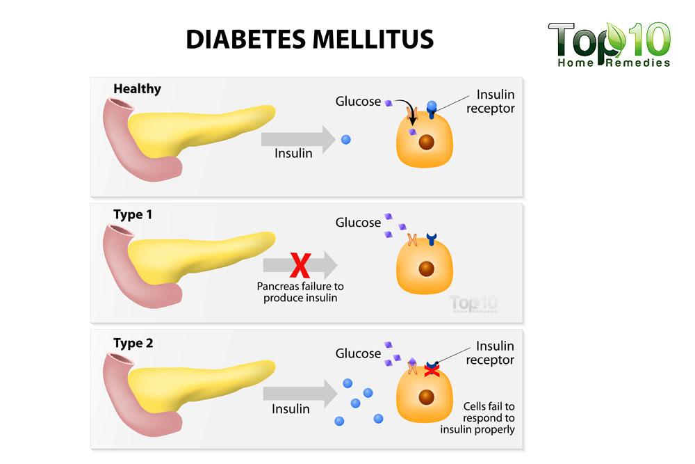 Diabetes mellitus / Zuckerkrankheit - Wie funktioniert diese Krankheit?